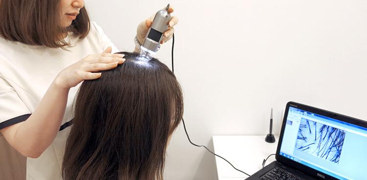 頭皮検査実例の写真