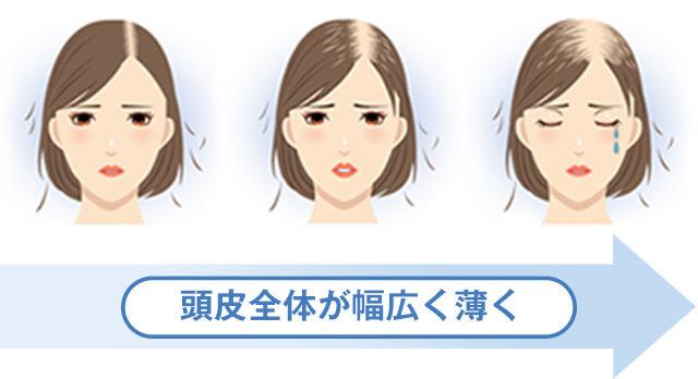 女性の男性化の症状